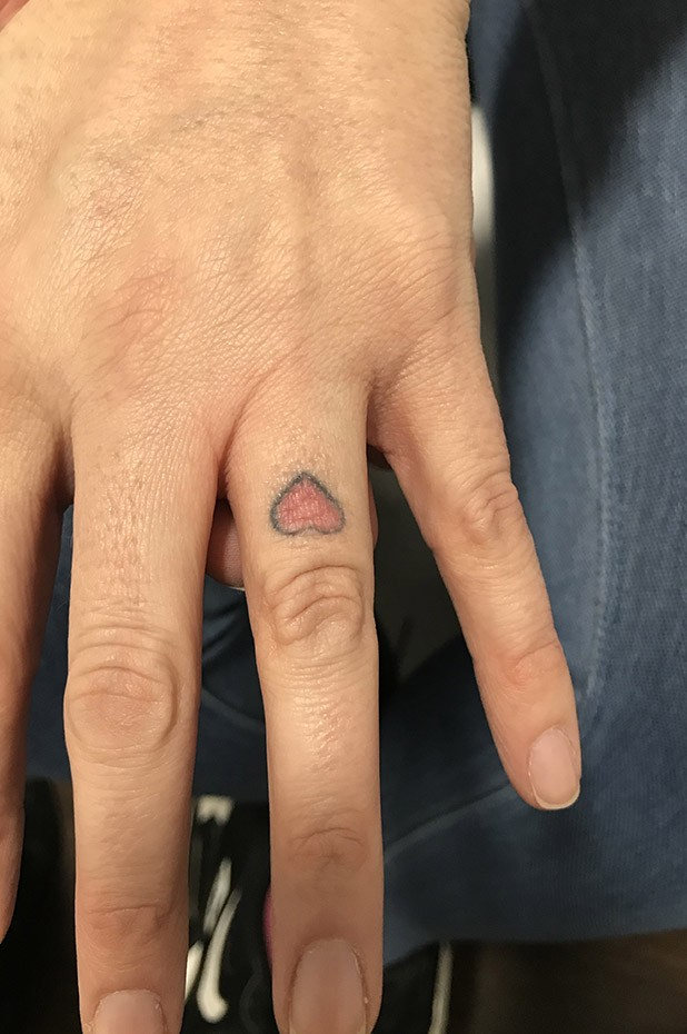 Tattoo - Before Image | Tattoo Removal Adelaide