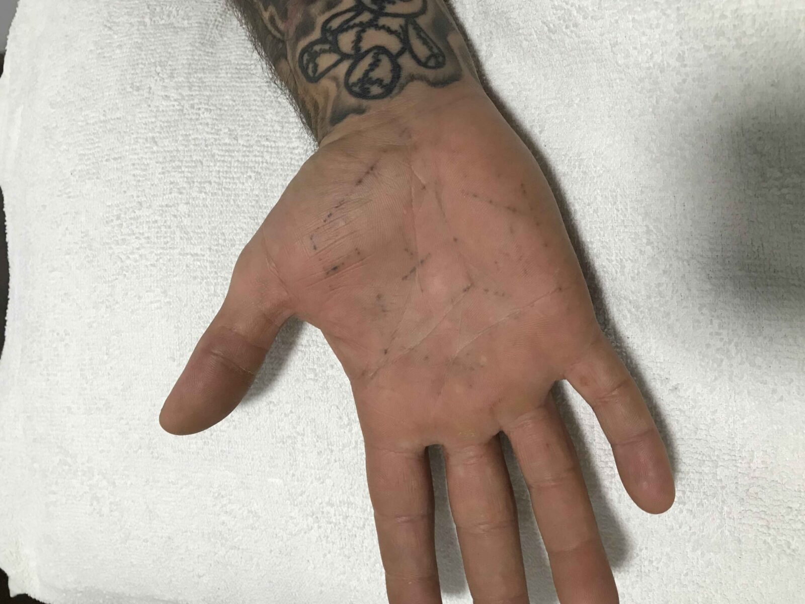 Tattoo - After Image | Tattoo Removal Adelaide